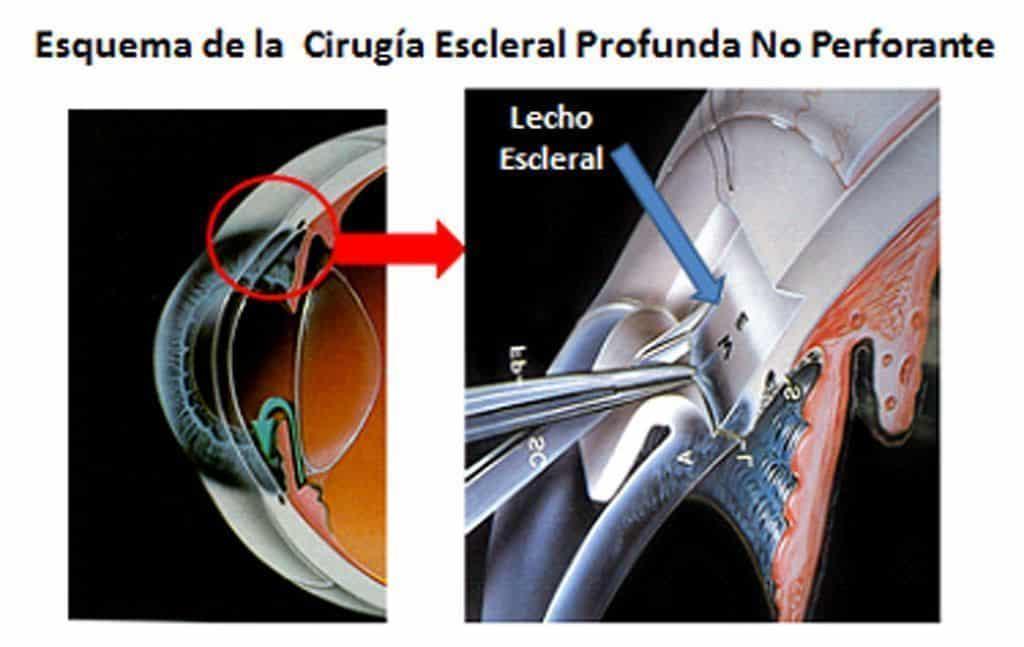 cirugia glaucoma