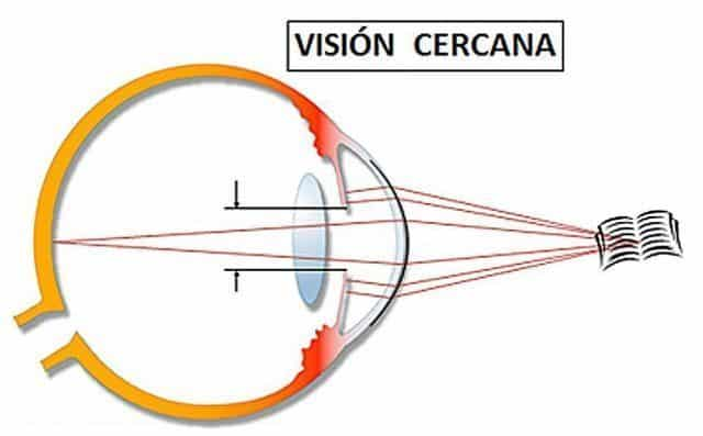 Vision cercana