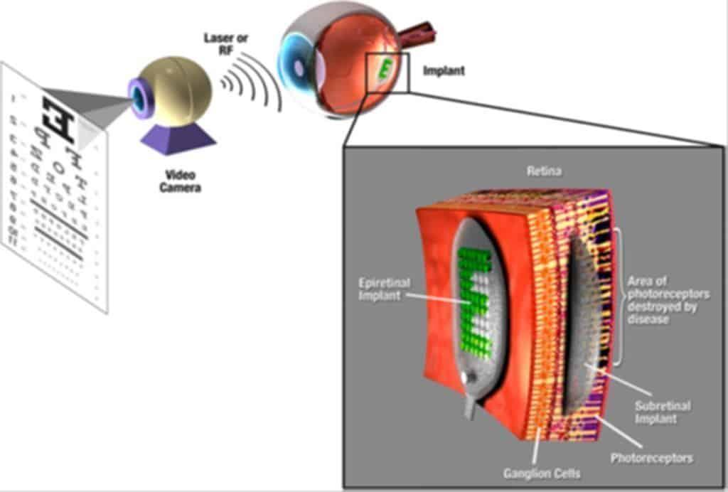 implante ojos ceguera