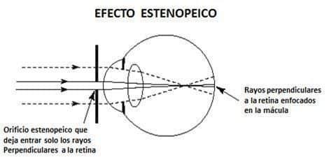 efecto estenopeico