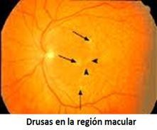 ojo con drusas macula