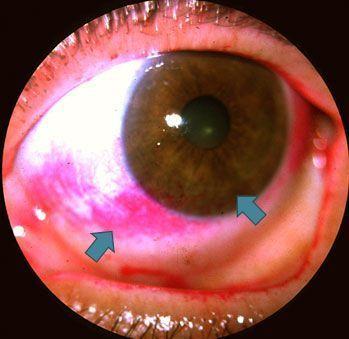 como afectan los estrógenos a los ojos