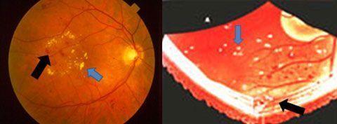 nuevo tratamiento retinopatía diabética