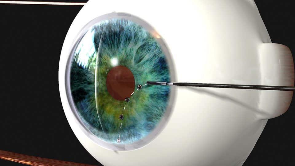 NOVEDADES EN EL TRATAMIENTO DEL GLAUCOMA