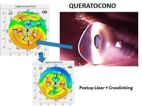 Tratamiento combinado de láser y crosslinking para el queratocono