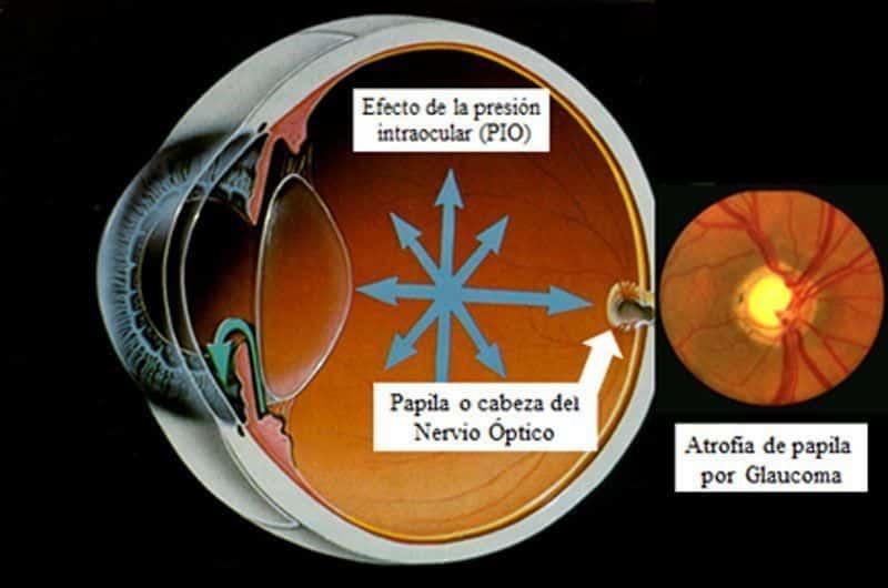 Fisiopatologia del Glaucoma