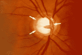 novedades glaucoma