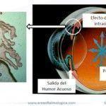 Glaucoma. Nuevos diagnósticos y terapias