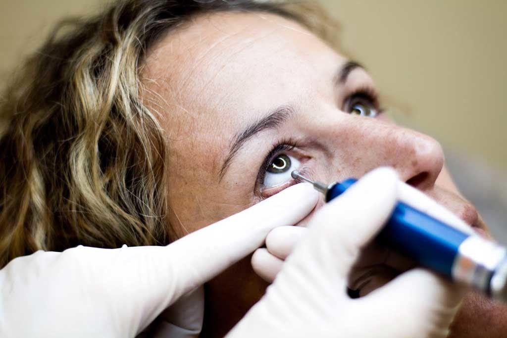 masaje ocular para el ojo seco