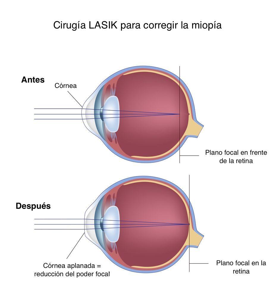 Errores refractivos del ojo: qué son y cómo tratarlos - Área ...