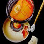 Retina Quirúrgica y mácula