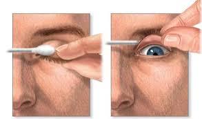 Exploración oftalmológica5