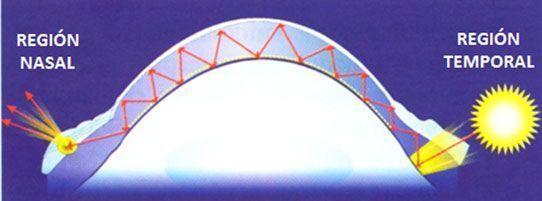 pterígio ocular