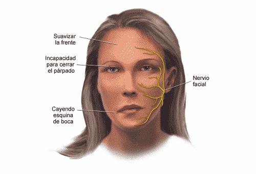 blefaroespasmo hemifacial