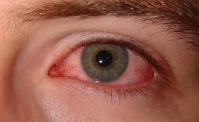 ojoseco