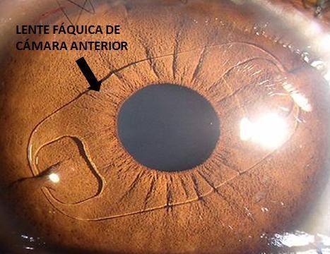 Lente Fáquica de cámara anterior con fijación en iris