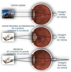 Tratamiento de la vista cansada (Presbicia)