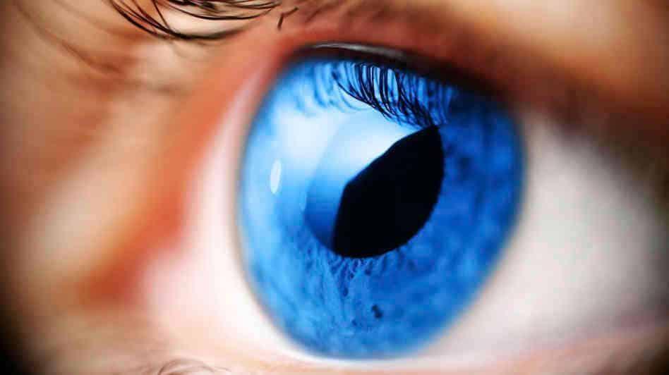 Glaucoma e infarto