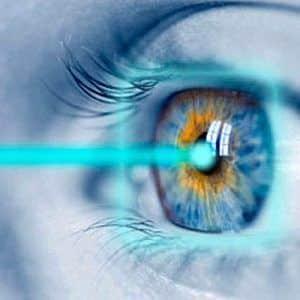 Lasik - astigmatismo