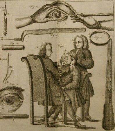 La cirugía de cataratas. Historia de un milagro médico cotidiano