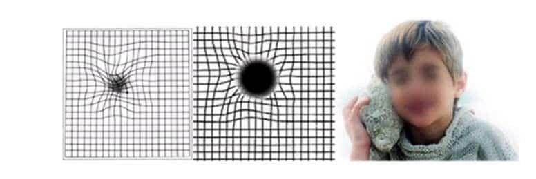 degeneracion macular dmae