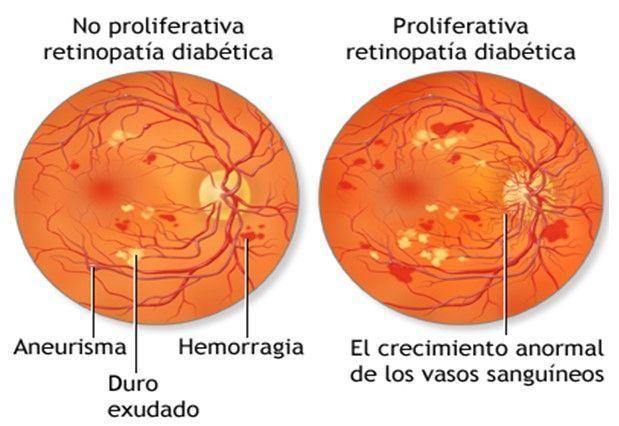 tipos de retinopatia diabetica