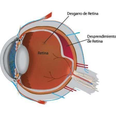 O descolamento de retina