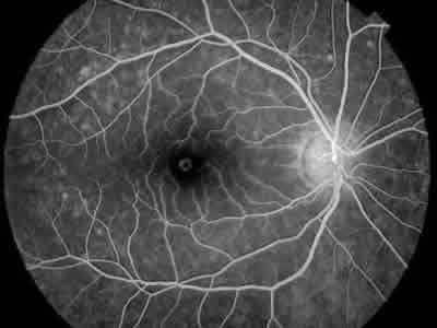 https://areaoftalmologica.com/quiero-saber-mas-de-oftalmologia/informacion-practica-paciente/preguntas-mas-frecuentes-los-adultos/