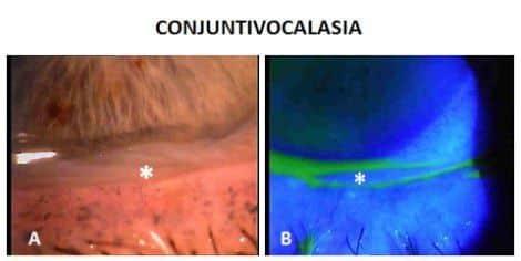 CONJUNTIVOCALASIA, una causa frecuente de OJO SECO e irritación ocular