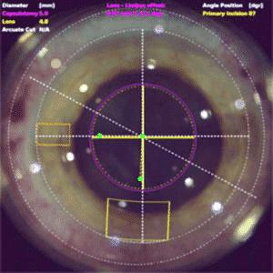 cataratas laser