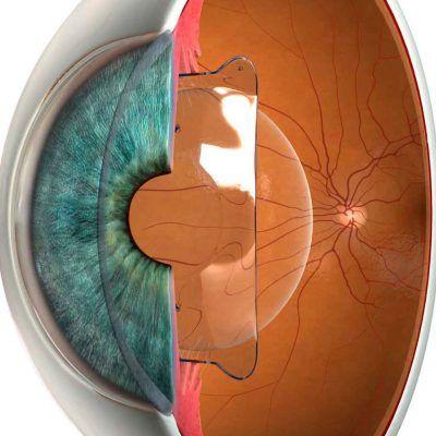 Cirugía refractiva con lentes intraoculares ICL