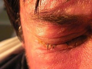 Blefaritis asociado a conjuntivitis con secreción purulenta en el Sx Stevens-Johnson