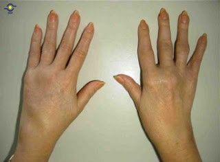 Deformidad articular de la mano en la Artritis Reumatoidea