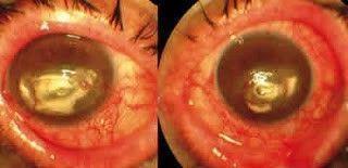 Degeneración calcárea bilateral en un paciente con EICH