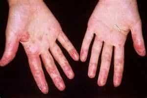 Eritema e inflamación de piel en el Lupus Eritematoso Sistémico