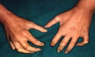 Manos en garras por esclerosis de piel en la Esclerodermia