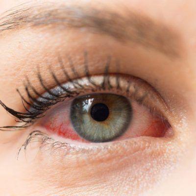 Síntomas de la conjuntivitis