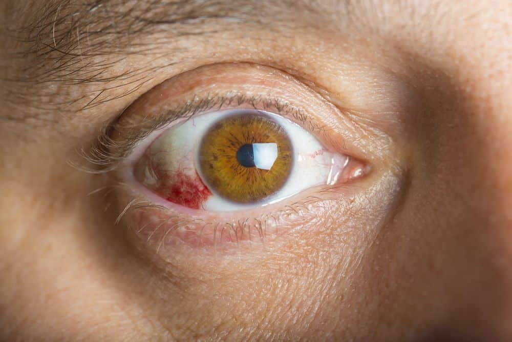 Derrames oculares: por qué ocurren y cómo tratarlos
