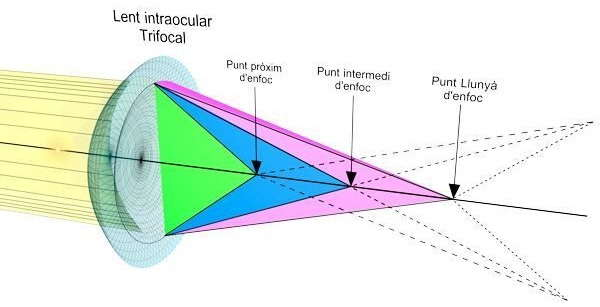 Funcionamiento de una lente intraocular trifocal