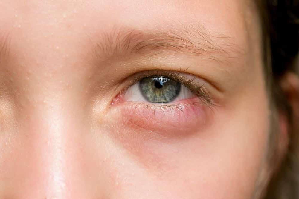 grano linear unit parpado lower del ojo
