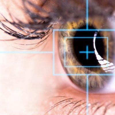 Precio de la cirugía refractiva