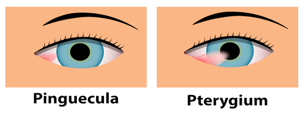 pinguécula y pterigion