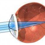 Monovisión y cirugía refractiva