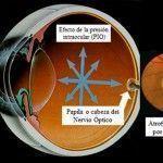 Glaucoma: Estrés y mala alimentación