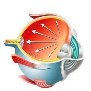 Glaucoma por cierre angular, una urgencia grave que se puede prevenir