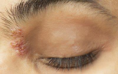 Herpes en el ojo: causas, duración y tratamiento