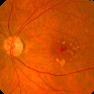 retina dmae barcelona