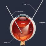 Vitrectomía: qué es, riesgos y postoperatorio
