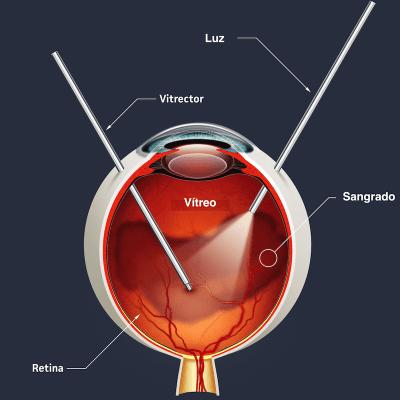 Vitrectomía