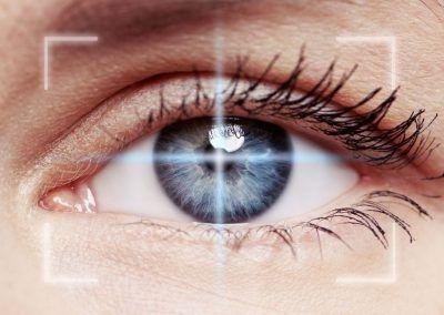Cómo es la operación de miopía